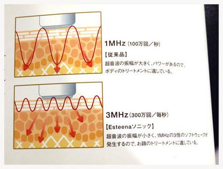 11美人になる方法 エスティーナソニック超音波画像1.jpg