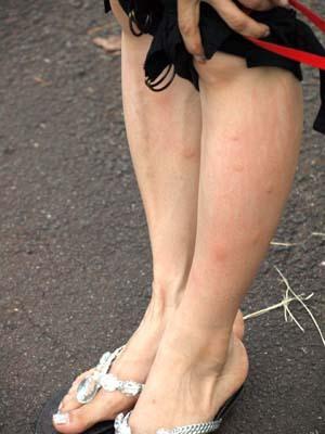 31 美人 蚊に食われた足.jpg